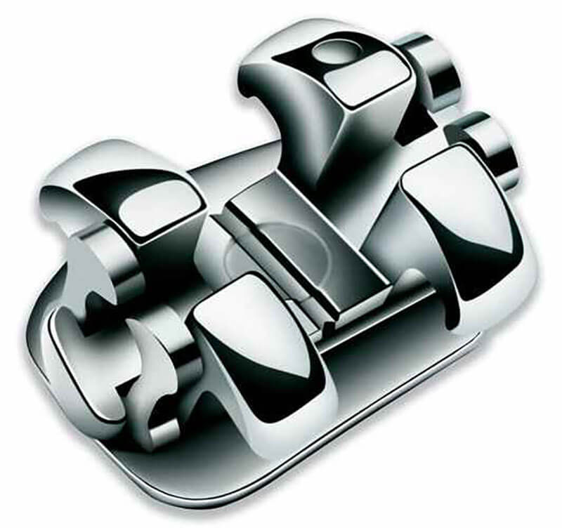 Smart Clip Self-Ligating Braces